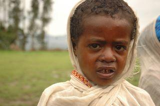 Poverty child tight nose run